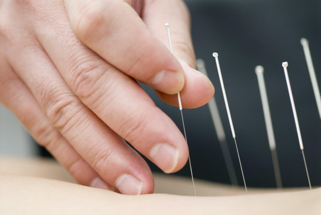 Treat Your Muscle Tension with Acupuncture