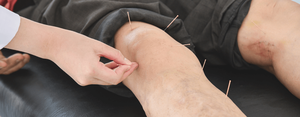 acupuncture-and-post-operative-proclinix-pt